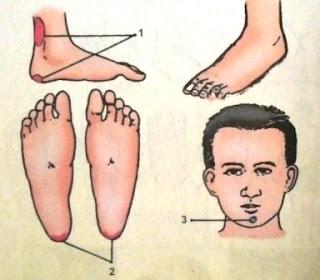 Titik Refleksi untuk Penyakit Ambeien
