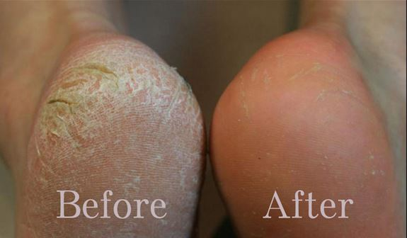 Treat Cracked Heels Overnight with This One Natural Ingredient