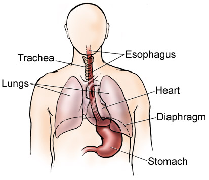 Esophagus Cancer Symptoms: Get Them Diagnosed