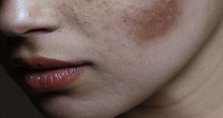 Bahan-bahan Alami yang Bisa Mengatasi Flek Hitam di Wajah