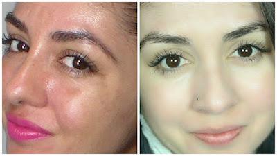 pele, cuidados com a pele, dermaroller, ácido hialurônico , vitamina c , colágeno, como ativar o colágeno da pele