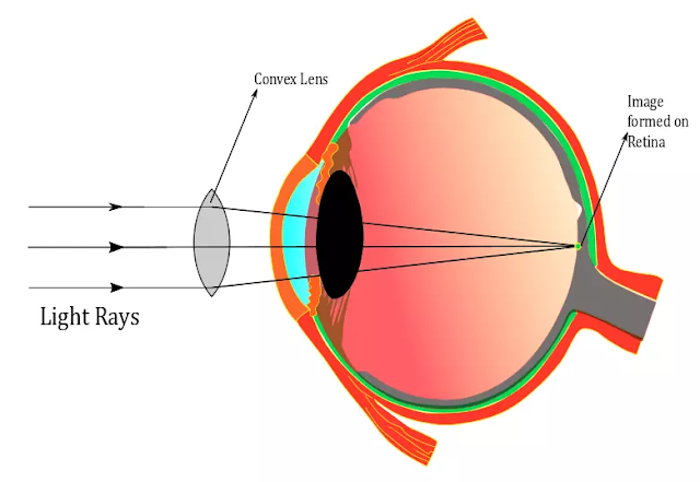 Hypermetropia lens , Correction of hypermetropia , farsightedness lens , Farsightedness meaning