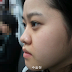 Pergi Jauh Ke Seoul Untuk Operasi Plastik Hidung, Tidak Menyesal!