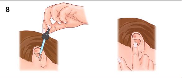 طريقة-استعمال-قطرات-الأذن-4