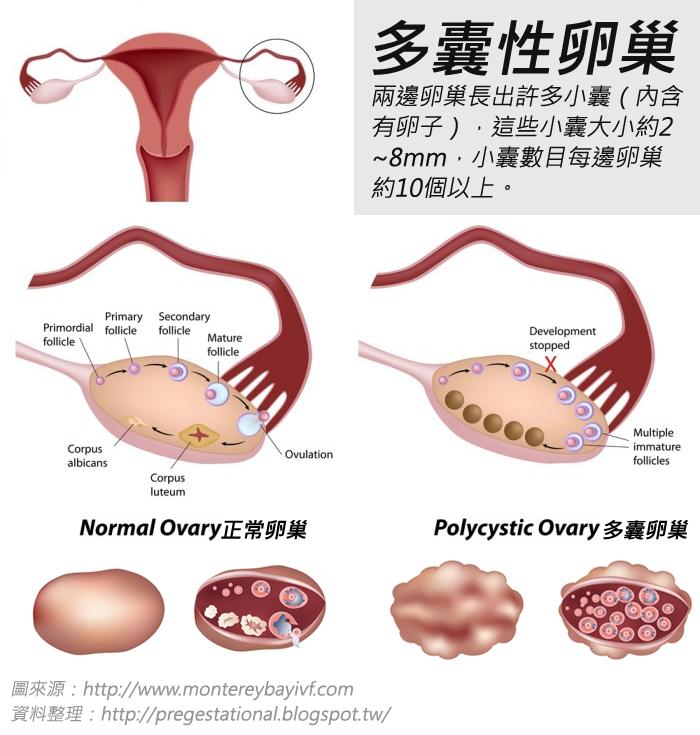 多囊性卵巢癥候群的助孕秘訣   媽咪拜MamiBuy