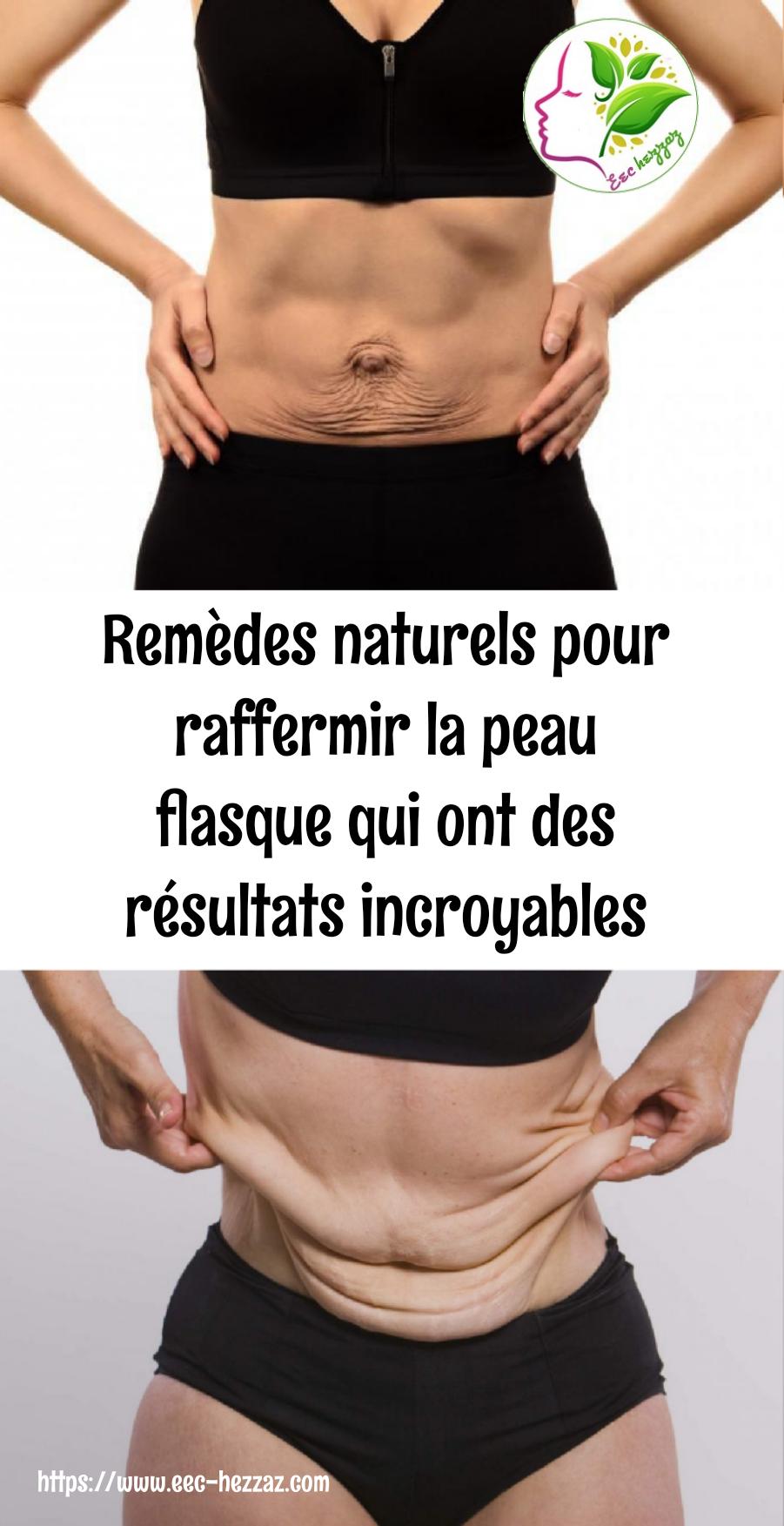 Remèdes naturels pour raffermir la peau flasque qui ont des résultats incroyables