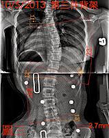 脊椎側彎矯正椅, 脊椎側彎, 脊椎側彎背架, 脊椎側彎矯正, 脊椎側彎治療, 脊椎側彎 推薦