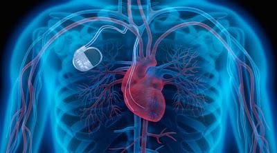 Los marcapasos salud corazón
