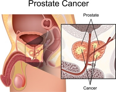 Prostate Cancer Treatment in Chennai