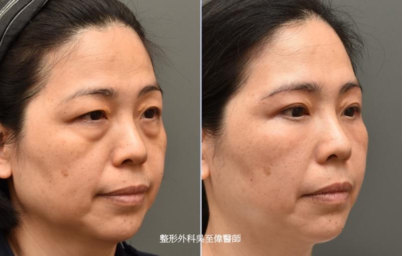 眼袋手術推薦案例-2