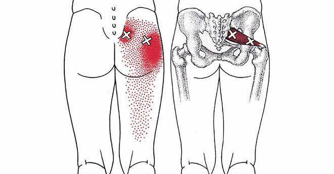 These 10 Piriformis Stretches Help You Get Rid Of Sciatica, Hip And Lower Back Pain