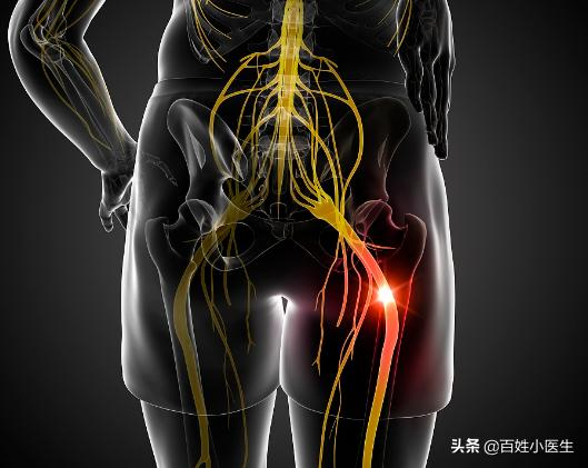 針對坐骨神經痛,可用這4步按摩方法,每天給自己家人按一次(腰間盤突出)