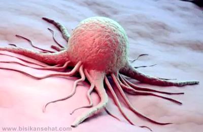 Cara Menyembuhkan Penyakit kanker dan Tumor Ganas