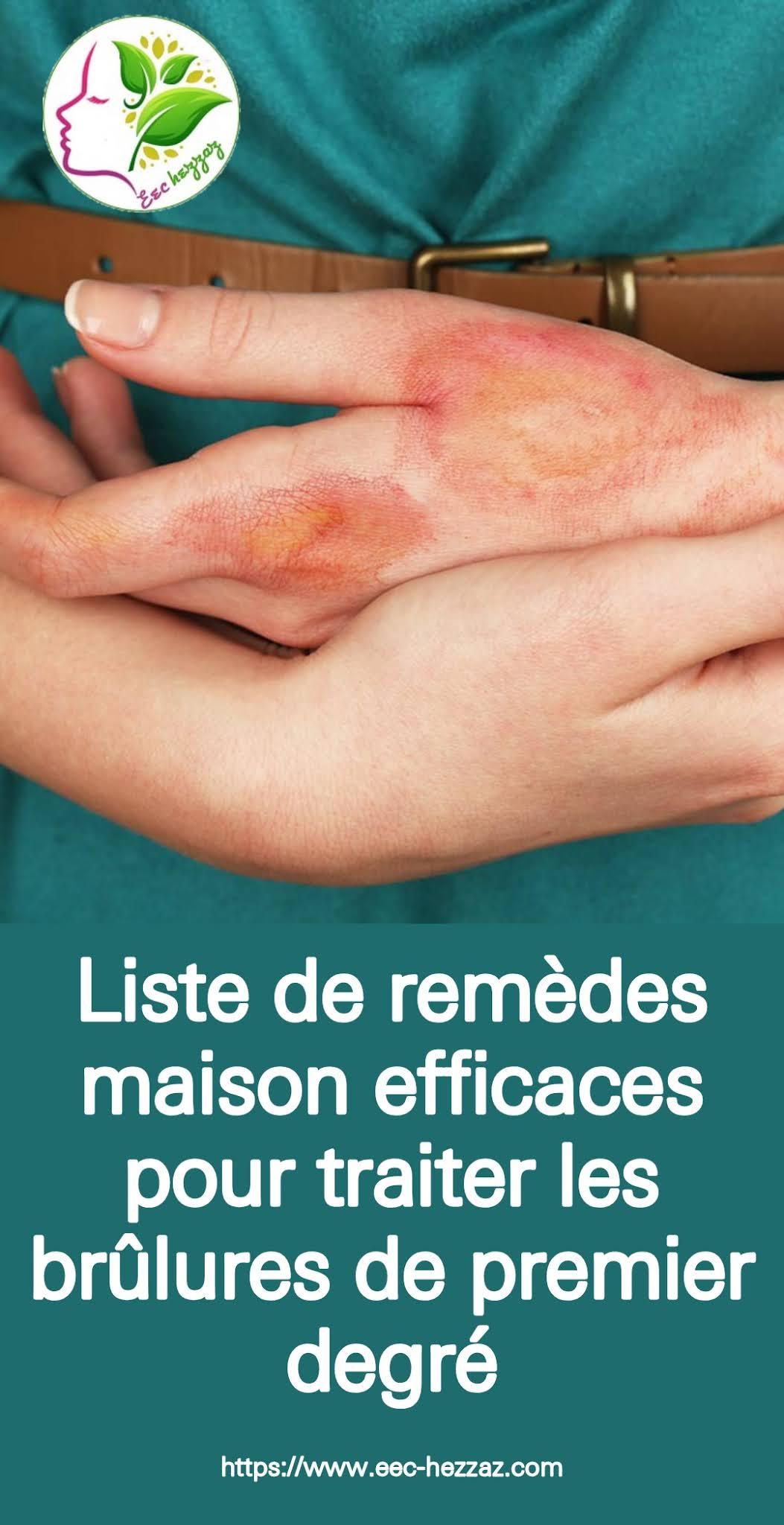 List of effectiveListe de remèdes maison efficaces pour traiter les brûlures de premier degré