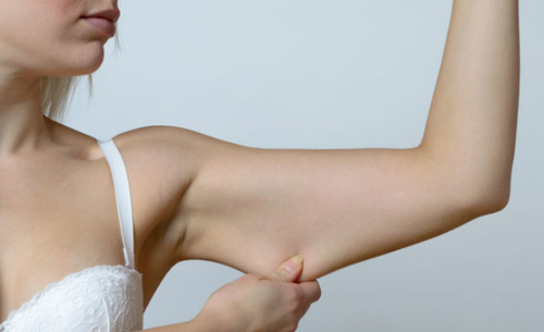 Arm Lift Surgery In New Delhi