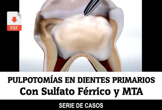 PDF: Pulpotomías con Sulfato Férrico y MTA en Dientes Primarios: Serie de Casos