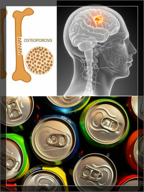 Soda is Full of Cancer-Causing Chemicals And Destroys Our Bones
