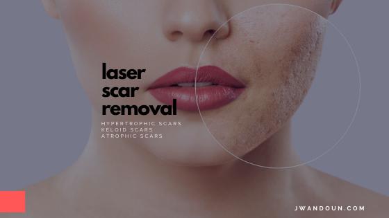 Laser For Scar Removal