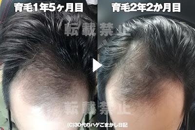 育毛2年2か月目の頭皮