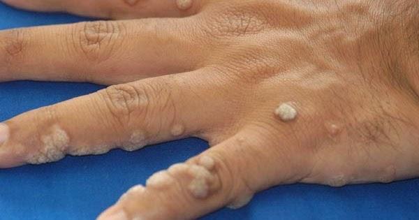 Human pailloma virus