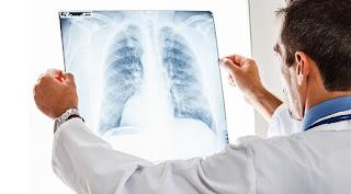 Kan testi ile akciğer kanserinin erken teşhisi mümkün olacak!