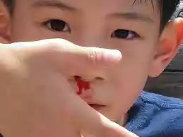 child nose bleeding and wrench