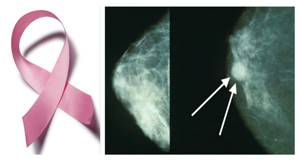This One Nutrient Prevents Breast Cancer, Study Confirms