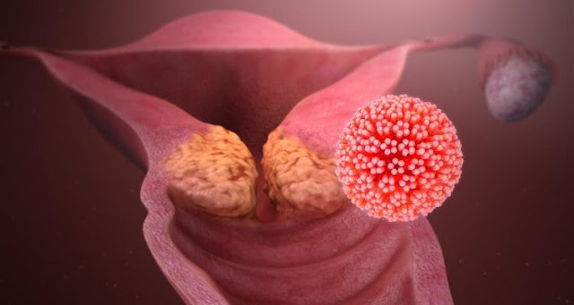 Will cervical cancer be totally eliminated in the next century?