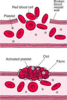 Soften and Clean Blood Vessels after Blood Clot