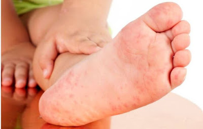 9 Main Causes Of Itchy Bottom Of Foot,itchy feet