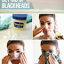 How to get rid of blackheads at home