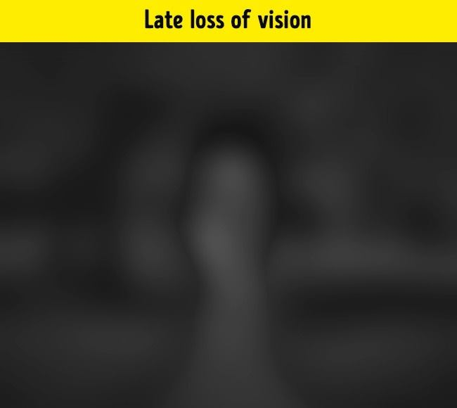 This image is seen by people with late loss of vision, where they have actually lost vision, but still partially see the light. They only distinguish between light and darkness. Usually these people who saw at birth, but later lost sight in their lives.