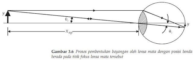 Proses pembentukan bayangan oleh lensa mata dengan posisi benda berada pada titik fokus lensa mata