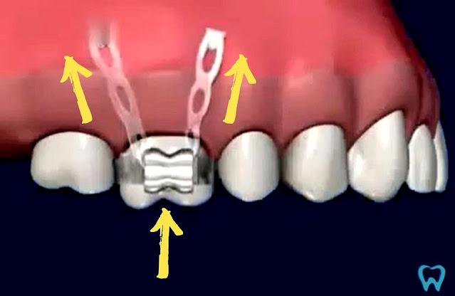 DENTAL INTRUSION: Use of mini-implants for molar intrusion - Animated video
