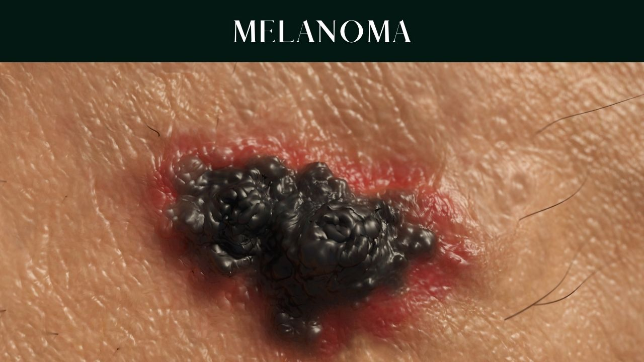 skin-cancer-types- causes-symptoms-pictures