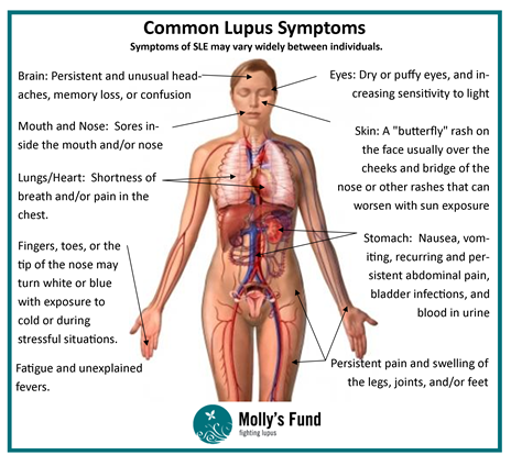 what is lupus and what are the signs and symptoms