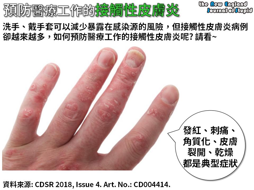 接触 性 皮膚 炎 画像