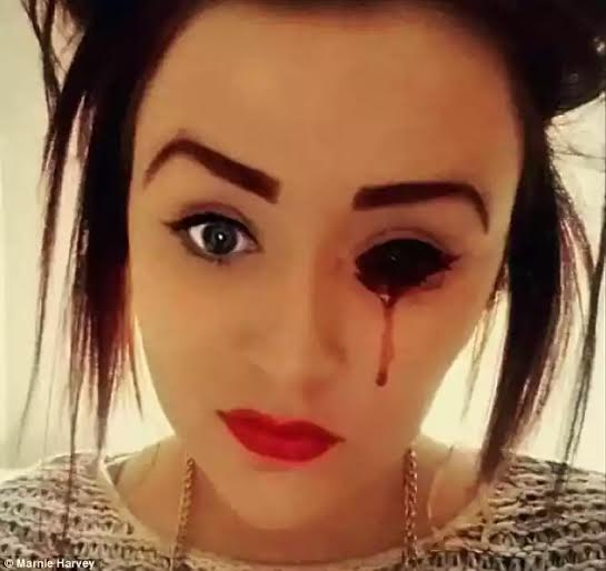 See Disturbing Photos of a 17- Year Old Girl Who Bleeds From Her Eyes , Nose, Ears , Scalp & Tongue