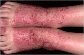 obat gatal koreng berair pada kaki