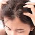 Apa Itu Dermatitis Seboroik?