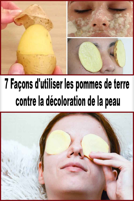 Façons d'utiliser les pommes de terre contre la décoloration de la peau