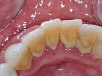 Seperti Inilah Cara Menghilangkan Karang Gigi Dengan Mudah dan Simple