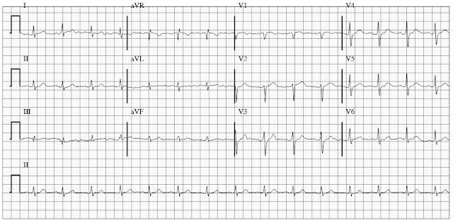 Normal ECG with  Baseline artifact