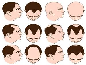 Hair Loss: The Causes and Misconception of Male Pattern Baldness