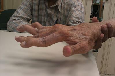 Swan neck deformity in a 65 year old man with rheumatoid arthritis.