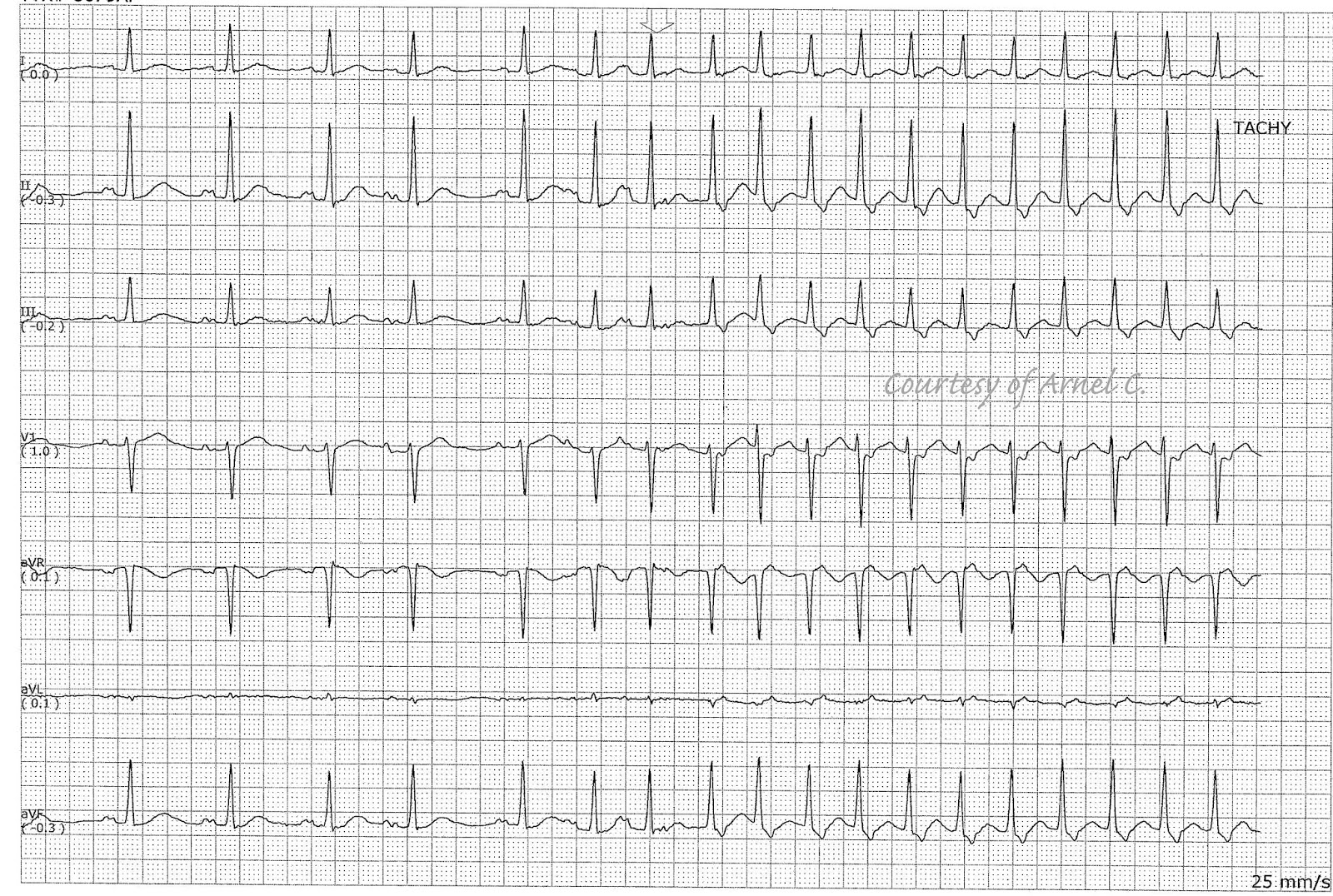 ecg rhythms  atrial arrhythmia triggering avnrt