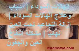 الهالات السوداء | أسباب وعلاج الهالات السوداء | إزالة التجاعيد تحت العين نهائيا | مشكله انتفاخ العين والجفون