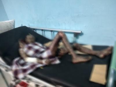 Warga Lampung Timur Derita Penyakit Langka