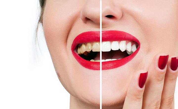 Tips kekalkan kecantikan gigi