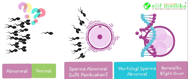 Blight ovum sebab morfologi sperma abnormal